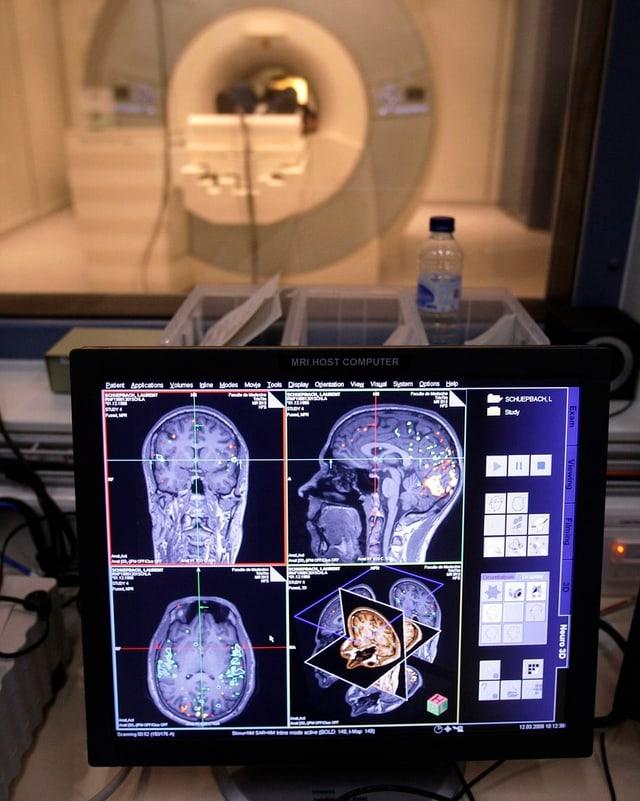 Ein Magnetresonanz-Tomograph wie hier in der Universität Genf zeigt Forschern, welche Hirnregionen aktiv sind.