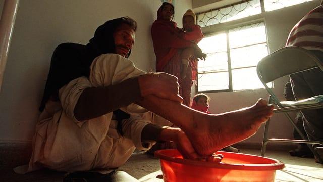 In einer Lepra-Mission in Osten von Delhi wäscht ein erkrankter Mann seine Wunden, bevor er zur Behandlung darf.