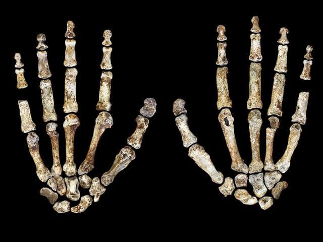 Vorder- und Rückseite des Skeletts einer Erwachsenenhand: