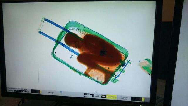 Röntgenaufnahme eines Koffers, in dem ein Junge sitzt.