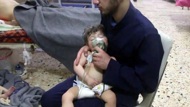 Ein Kleinkind mit einer Sauerstoffmaske.