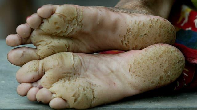 Tumorartige Geschwüre an der Fusssohle und den Zehen deuten auf eine fortgeschrittene Arsenikose hin.