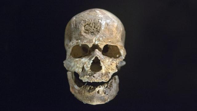 Schädel Homo sapiens