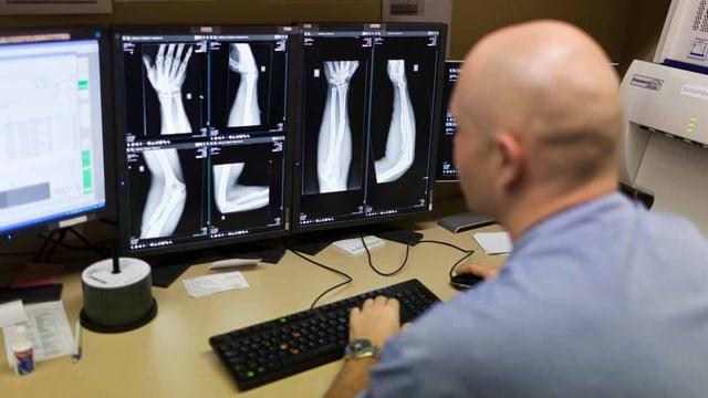 Ein Arzt schaut sich die Röntgenbilder am Computer an.