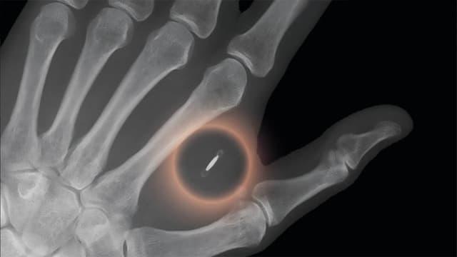 Röntgenbild Hand mit Chip