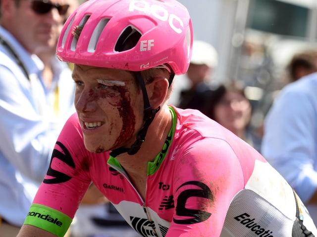 Blutüberströmter Radfahrer.