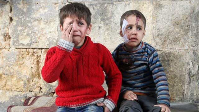 Zwei verletzte Kinder, der eine Junge weint.