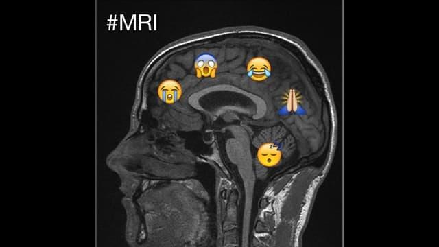 Radio SRF 1, 18.11.2015: Tweets aus dem MRI