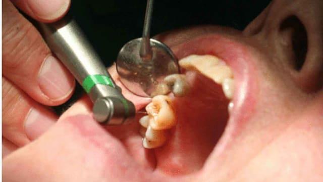 Überbehandlungen beim Zahnarzt nehmen zu