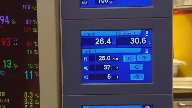 Monitor, der die Körpertemperatur der Patientin anzeigt.