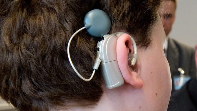 Ein Cochlea-Implantat.