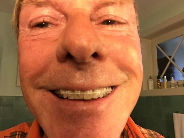Kurt Aeschbacher lächelt in die Kamera und zeigt dabei seine Zahnspange.