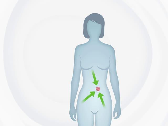 Grafik eines menschlichen Körpers.