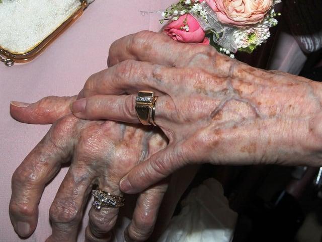 Zwei Hände alter Frauen mit Eheringen an den Fingern.