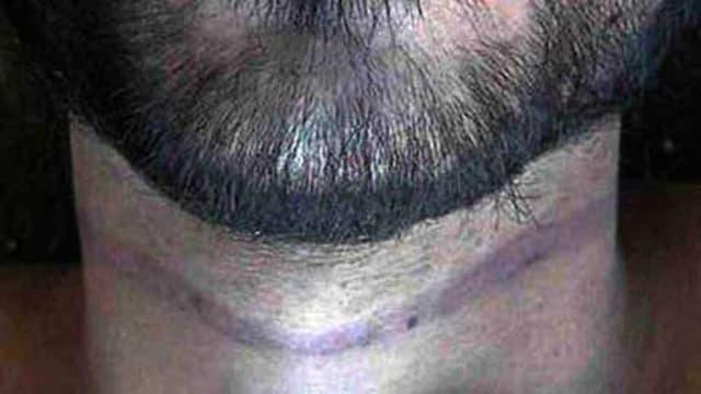 Kinn eines Mannes, darunter ein Hals mit möglichen Strangulierungsmal