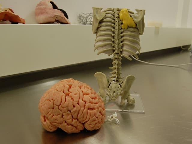 Hirn-Modell aus Kautschuk, daneben krankes Gefäss, dahinter ein Brustkorb mit Tumor