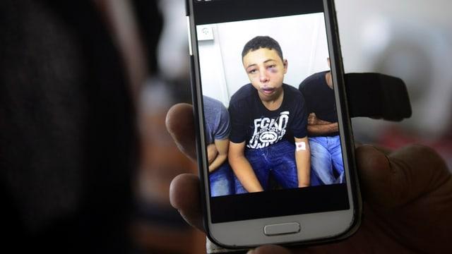 Ein Jugendlicher mit Verletzungen im Gesicht