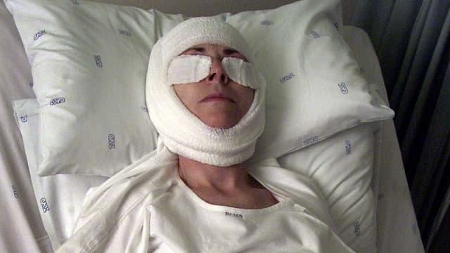 Eine Frau mit Bandage um den Kopf und auf den Augen liegt in einem Krankenhausbett.