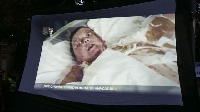 Säureanschlag auf Aktivistin in der Ukraine