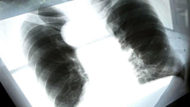 Röntgenbild einer von Asbest geschädigten Lunge.