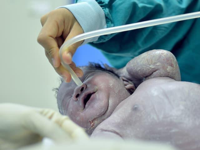 Bei einem Neugeborenen werden die Atemwege freigesaugt.