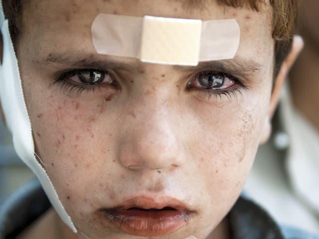 Ein Junge mit Pflastern an Stirn, Kinn und Wange.