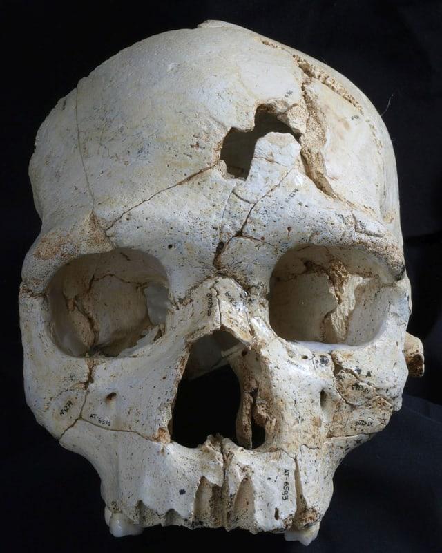 Ein menschlicher Schädel mit zwei Löchern im Stirnknochen.