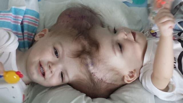 Die beiden siamesischen Zwillinge.