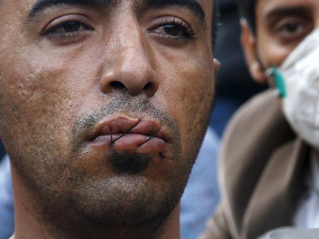 Ein Iraner hat sich an der griechisch-mazedonischen Grenze den Mund zugenäht. (reuters)
