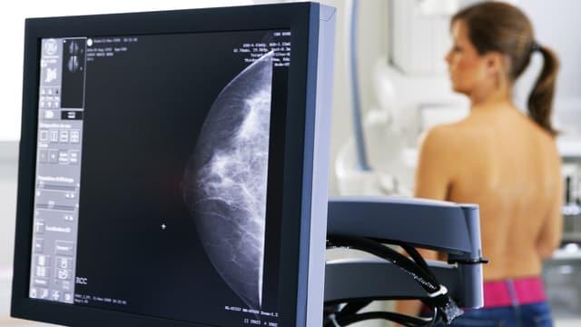 Ein Bildschrim mit der Mammografieaufnahme einer weiblichen Brust. Im Hintergrund steht verschwommen die Patientin am Mammografiegerät.