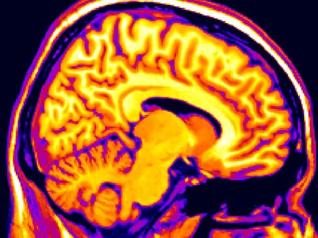 Querschnitt durch ein Hirn in Gelb- und Rottönen.