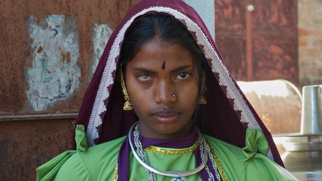 Eine indische Frau mit einer Trübung der Hornhaut.