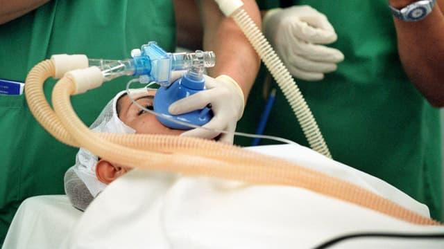Eine Patientin erhält ein Narkosemittel für eine Operation über eine Atemmaske