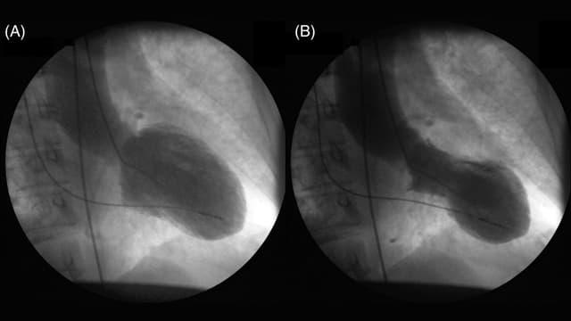 Kontrastbild eines Takotsubo-Herzens