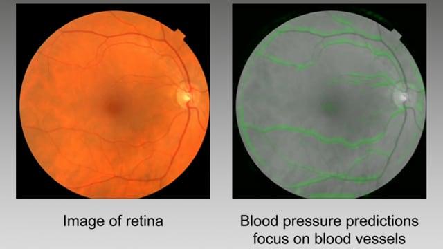 Zwei Bilder der Menschlichen Retina.