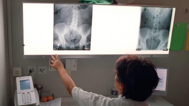Eine Ärztin betrachtet ein Röntgenbild.