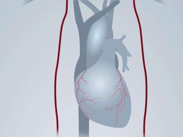 Grafische Darstellung des Herzens