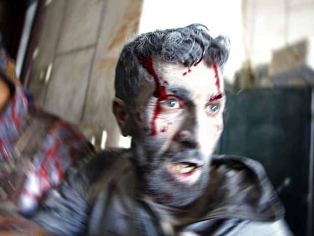 Ein Mann mit blutüberströmten Gesicht.