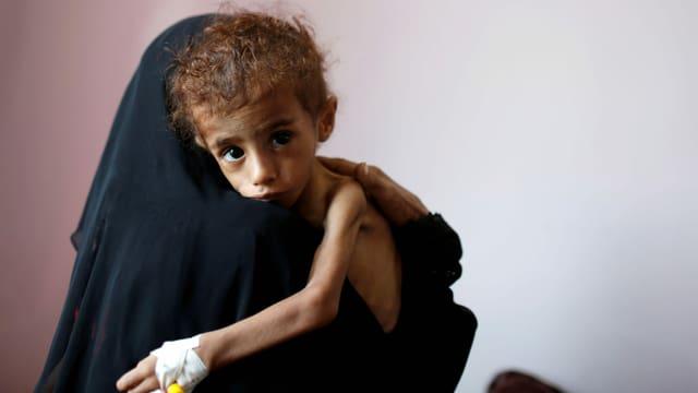 Frau mit Kind in Spital in Sanaa