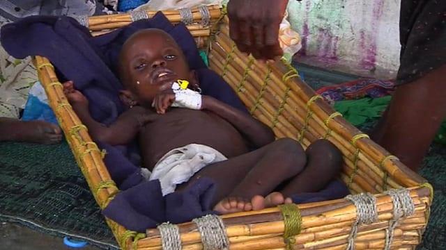 Ein unterernährtes Kind erhält Hilfe von den Médecins Sans Frontières in Südsudan.