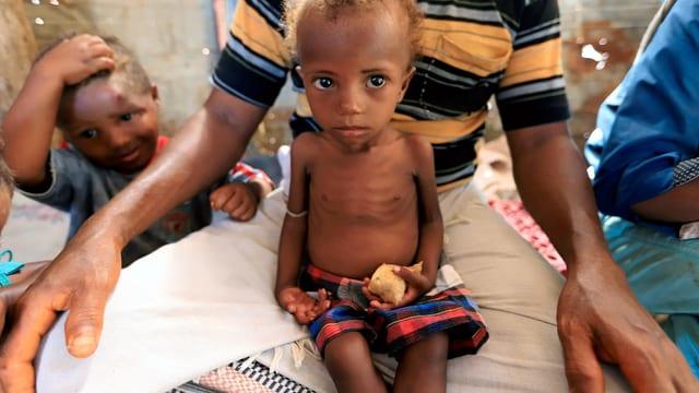 Glückskette sammelt für Jemen