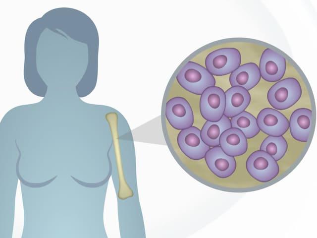 Grafik mit Frau und Stammzellebn