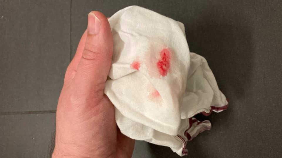 Blutflecken auf einem Taschentuch.