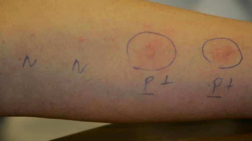 Desensibilisierung: Die Hautreaktion gibt an, worauf man allergisch ist.