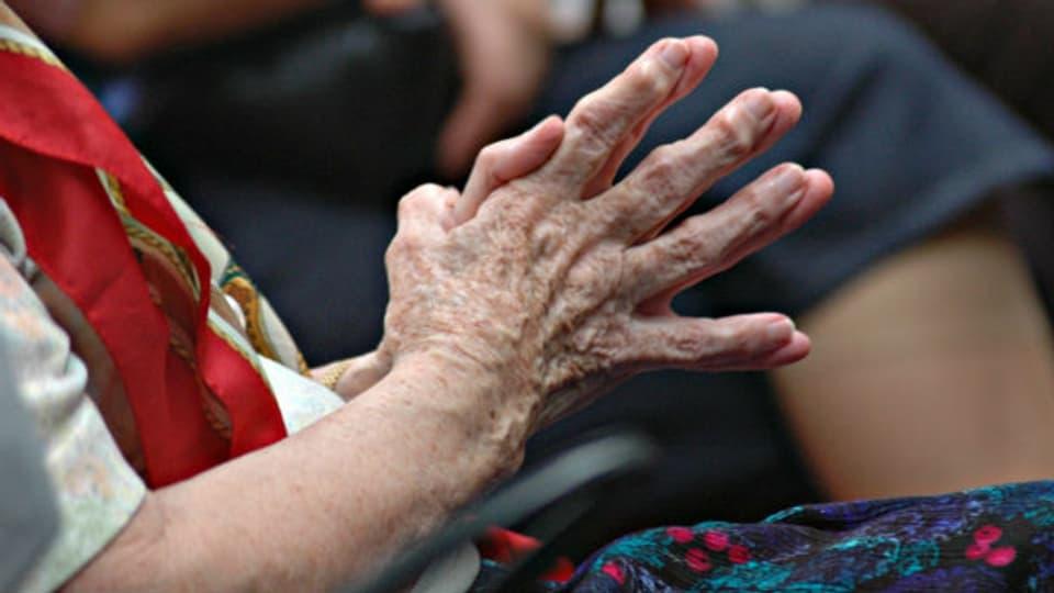 Rheumatische Erkrankungen deformieren die Gelenke und schmerzen.