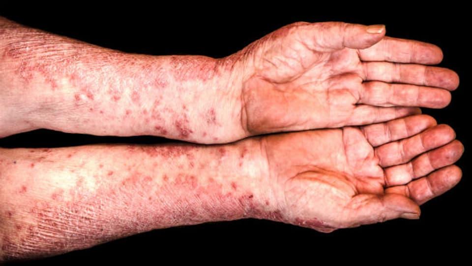 Die richtige Hautpflege ist wichtig, allerdings kann eine übertriebene Pflege der Heilung auch entgegenwirken.