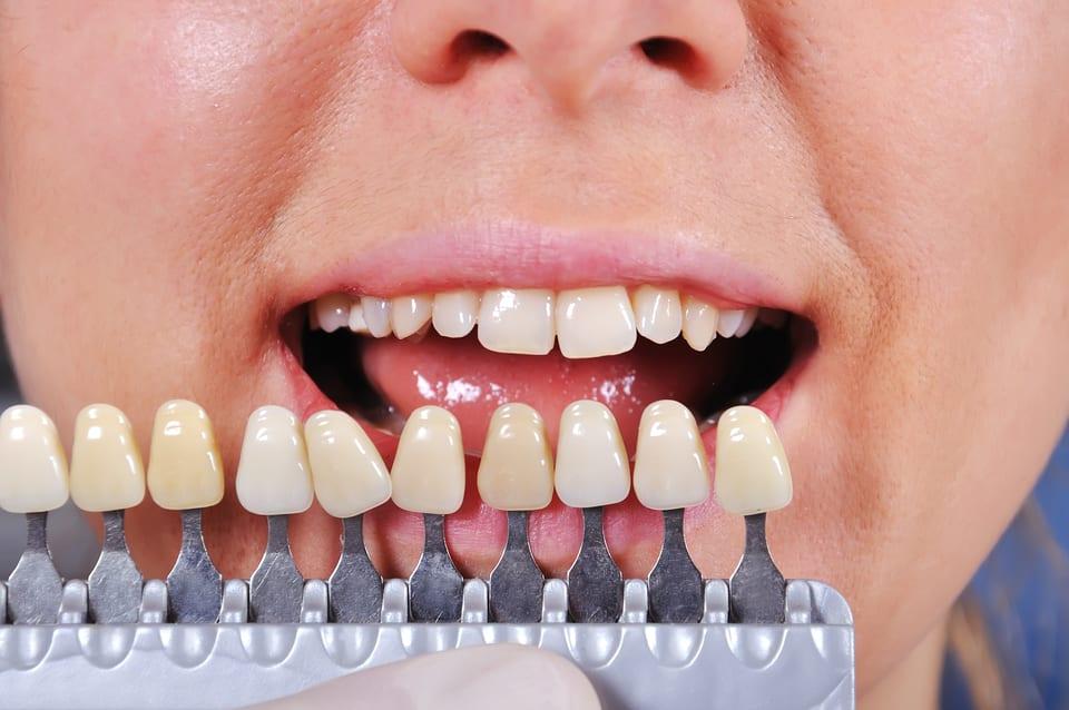 Zähne können sich im Laufe des Lebens verfärben