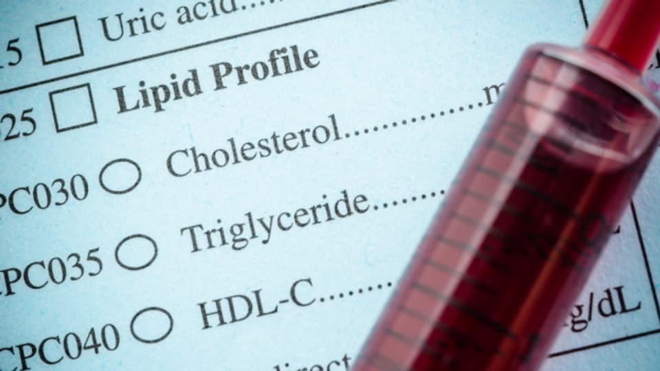 Ab 40 Jahren bei Männern und Frauen ist eine Untersuchung des Cholesterins angezeigt