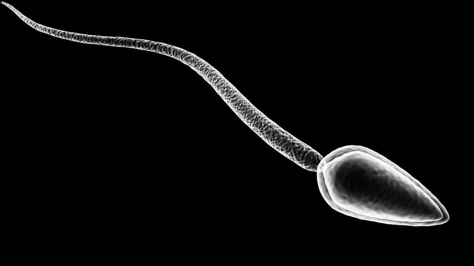 Fehlerhafte Spermien bei unter 20-Jährigen