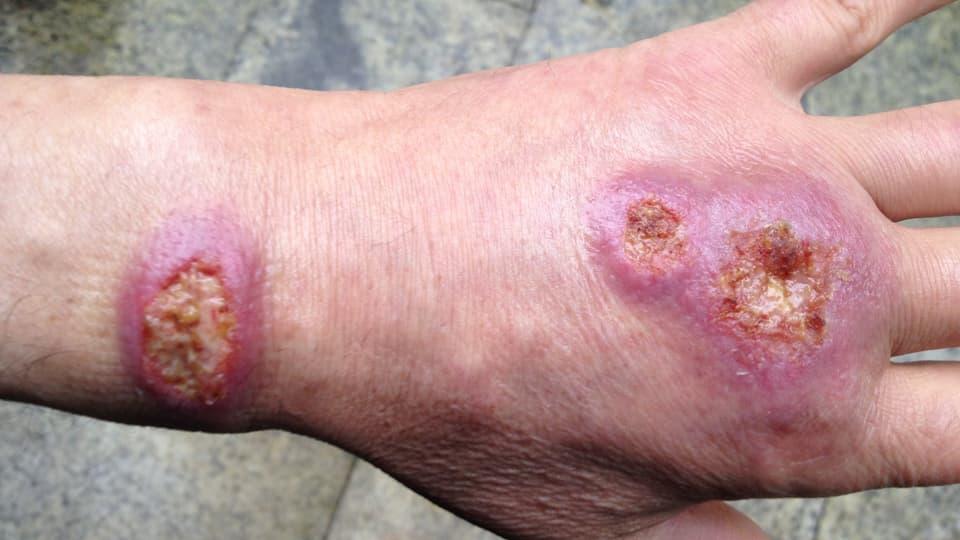 Hautkrankheiten als Reisesouvenir
